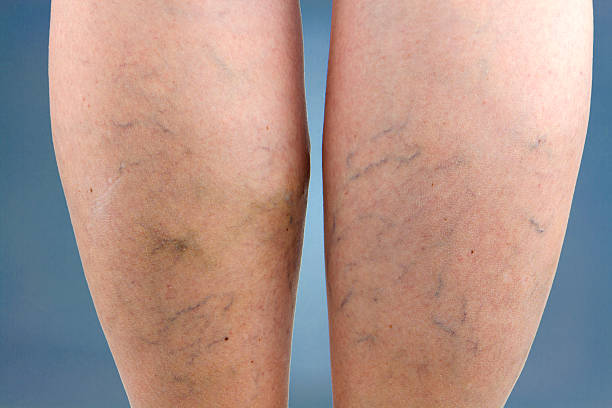 Vein Treatment Maryland