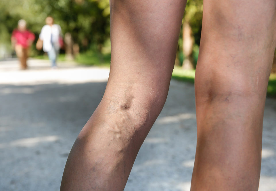 Unsightly Veins Baltimore