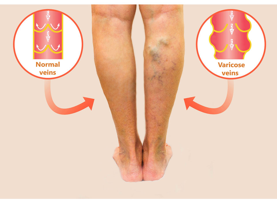 Get Rid of Varicose Veins