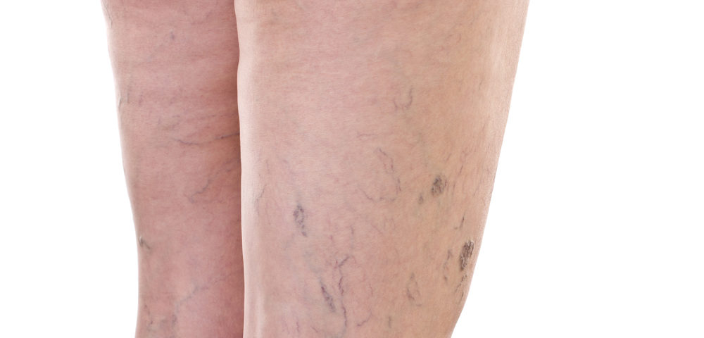 Signs and Symptoms of Vein Disease