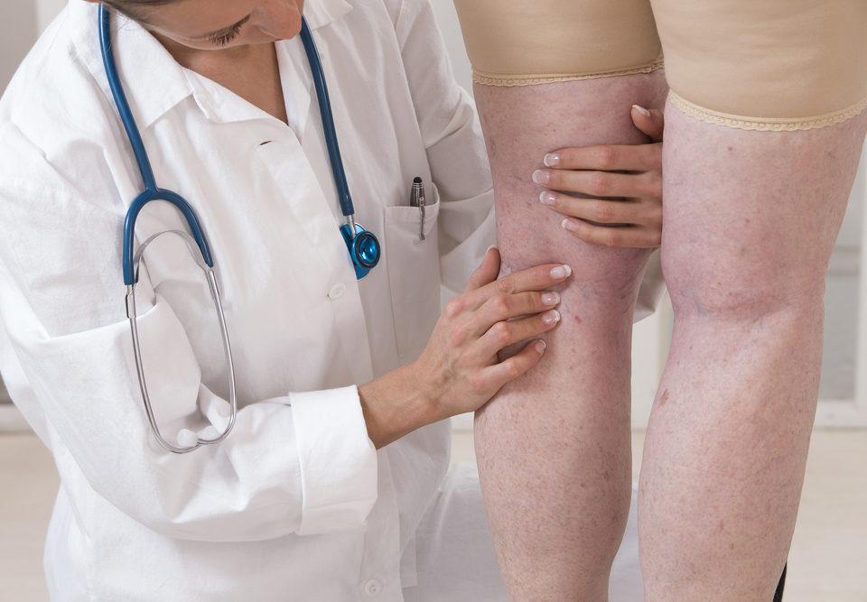 Leg Vein Problems