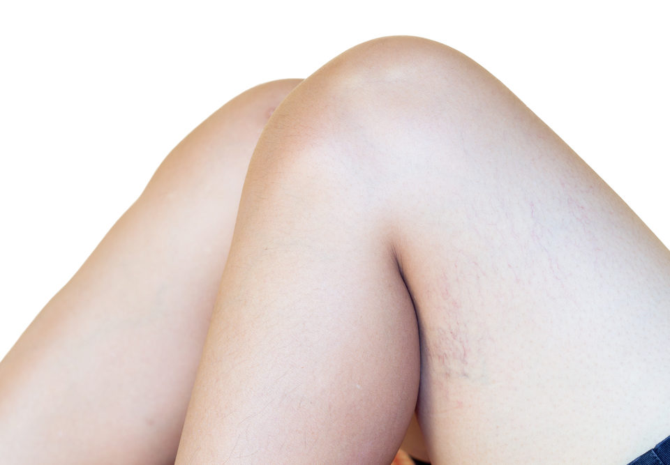 Strengthen the Veins in Your Legs
