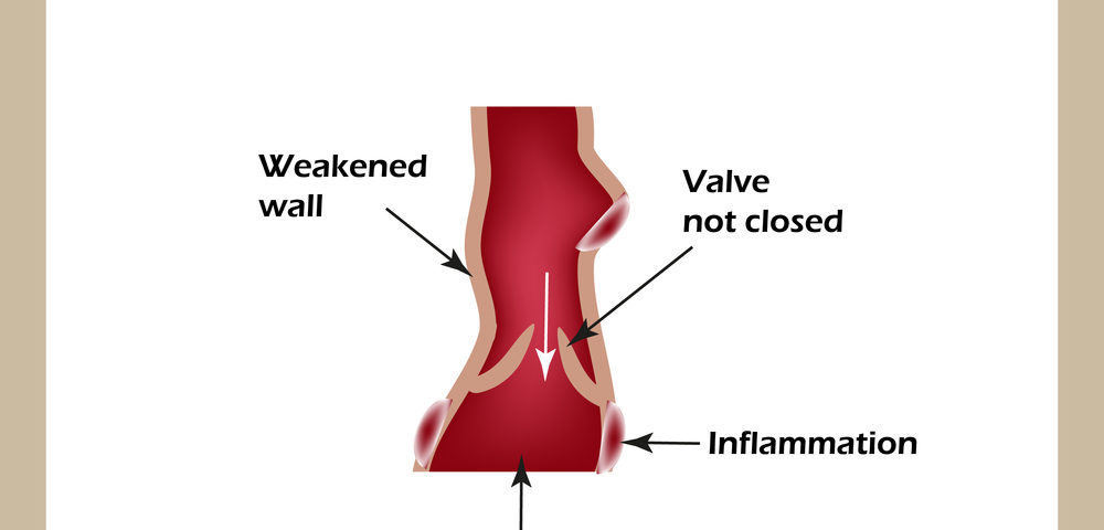 Venous Leg Ulcers