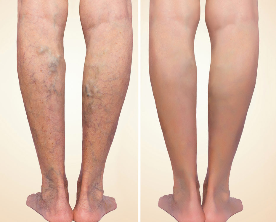 Varicose Veins Myths