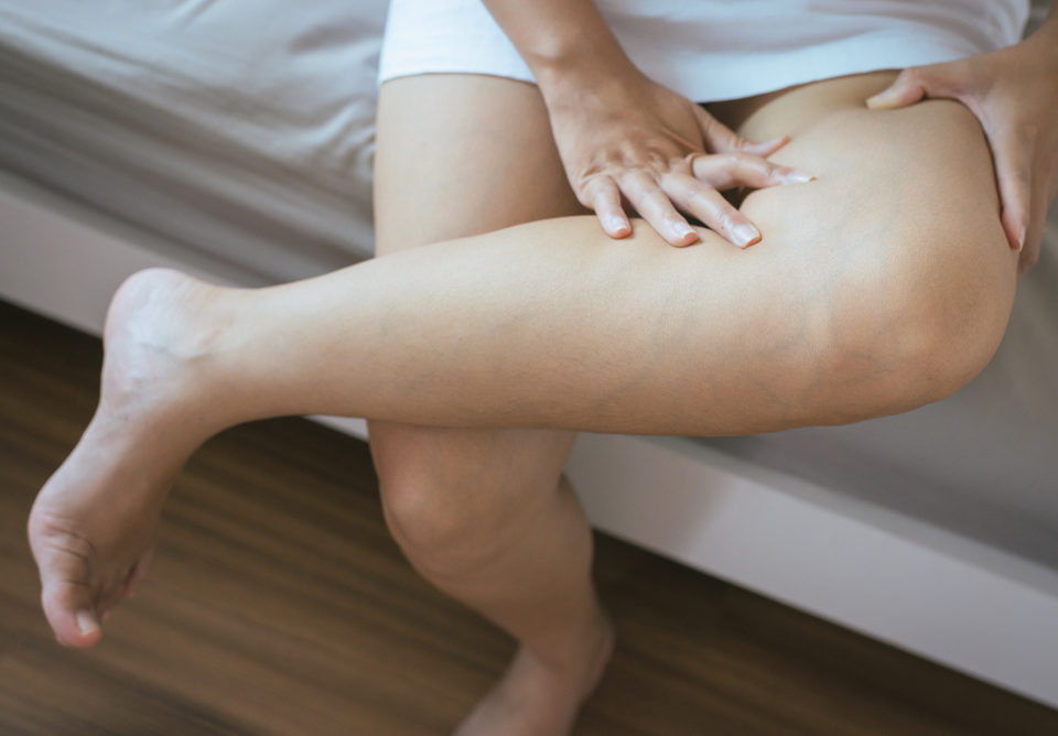 Deep Vein Thrombosis Frequently Asked Questions