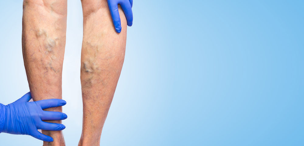 Varicose Veins Frequently Asked Questions