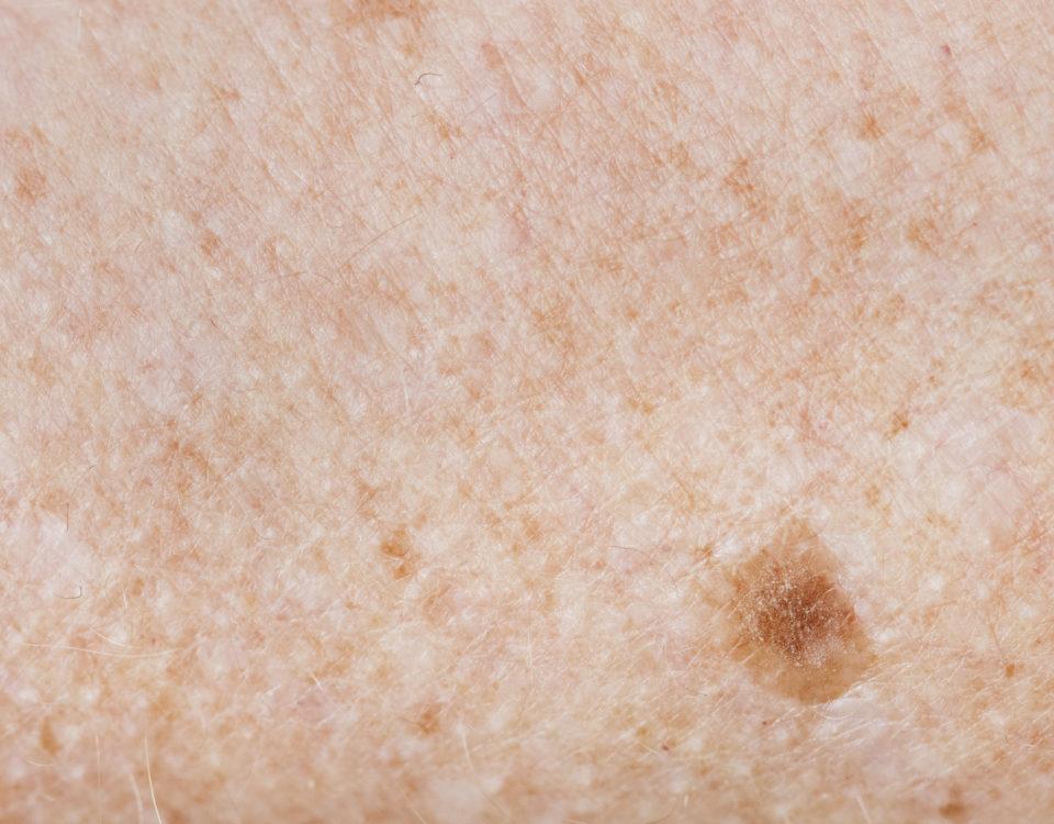 melanoma and age spots maryland
