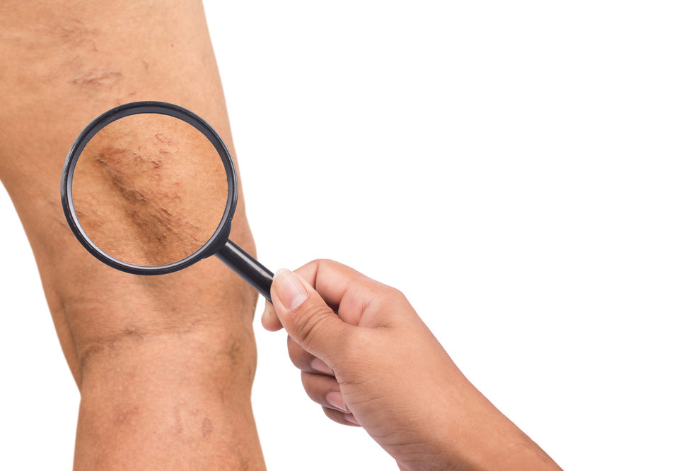 Untreated Varicose Veins