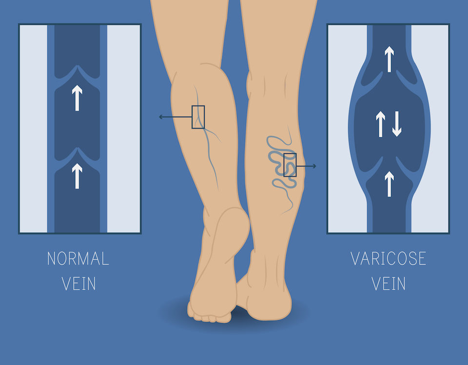 Types of Vein Conditions