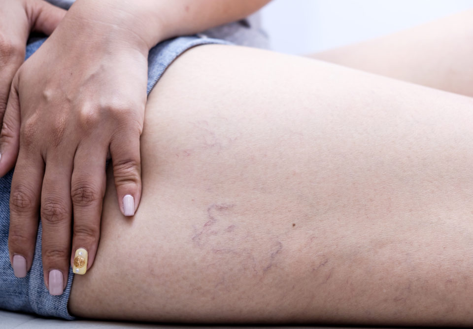 What Are Spider Veins?