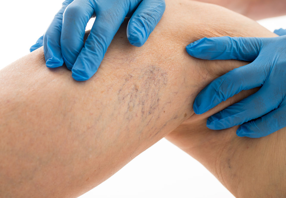 Chronic Venous Insufficiency Maryland