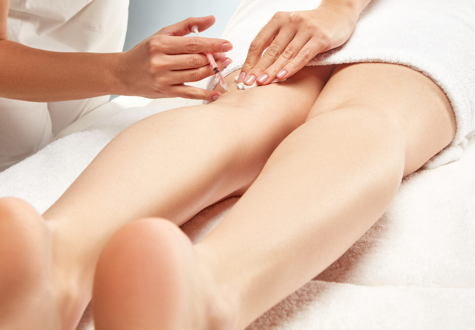 Sclerotherapy for Beginners