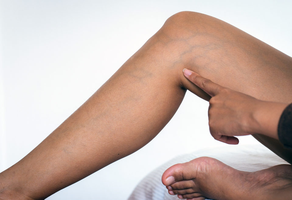 Varicose Veins: Cosmetic Issue or Health Concern