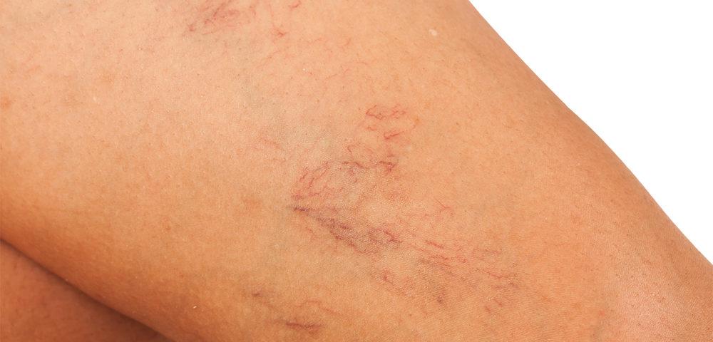 Untreated Leg Veins