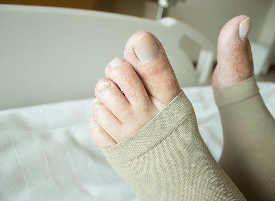 compression socks varicose veins maryland