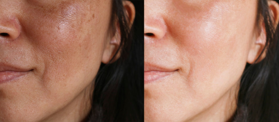 Ablative Laser Resurfacing Maryland
