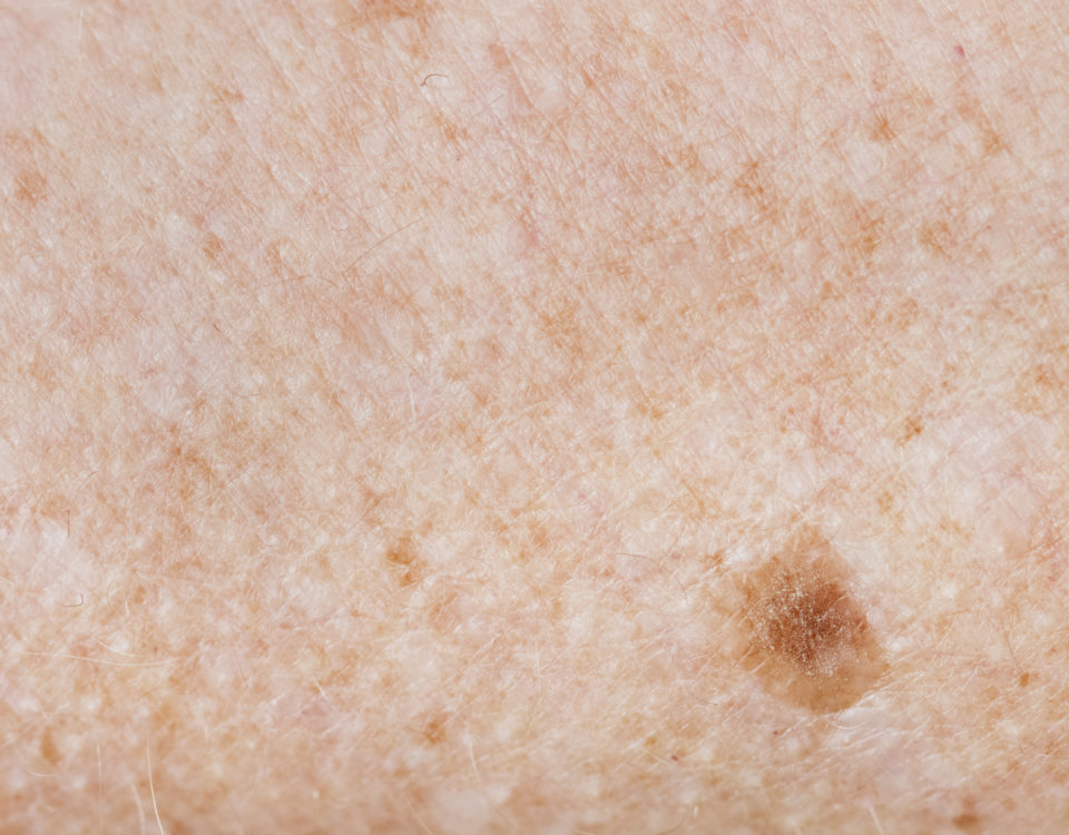 melanoma and age spots maryland
