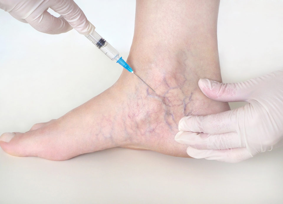 sclerotherapy columbia