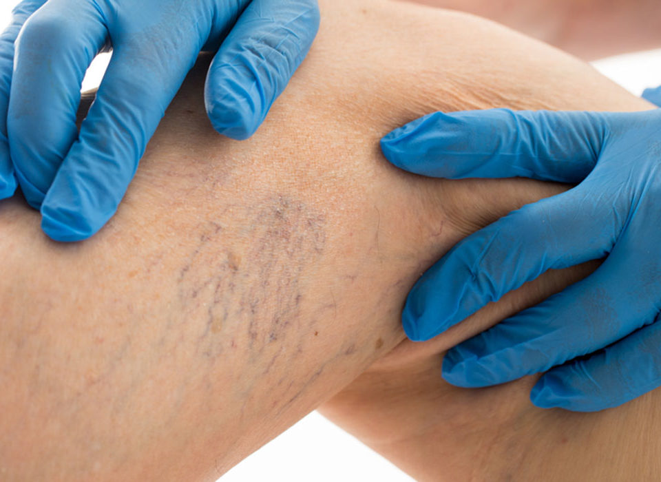 spider veins howard county