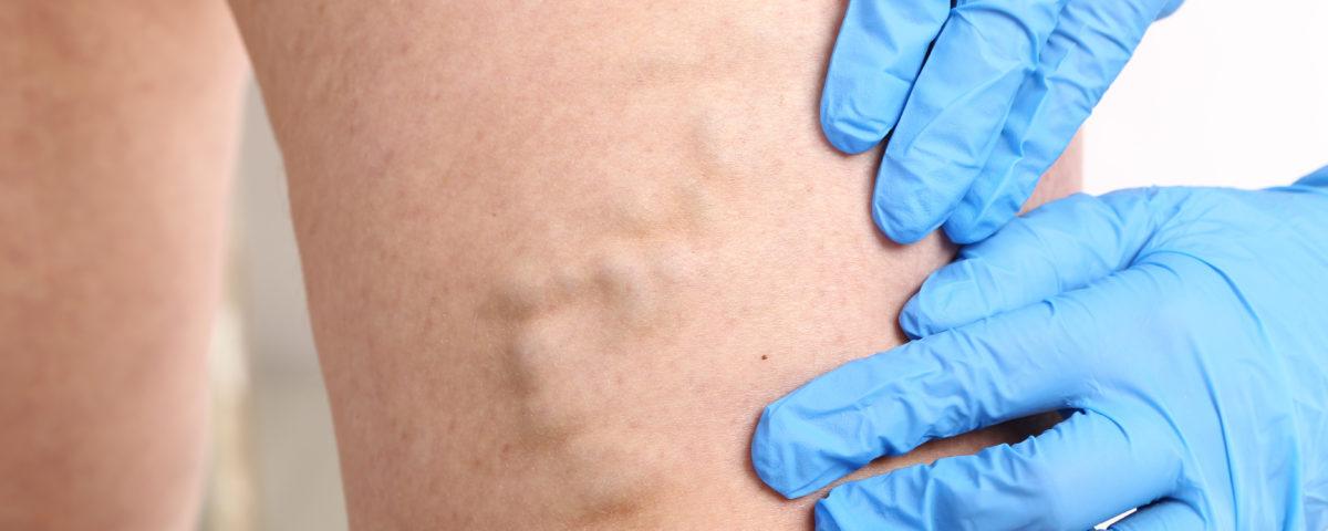 vascular condition CVI columbia