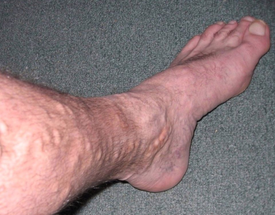 bulging varicose veins baltimore
