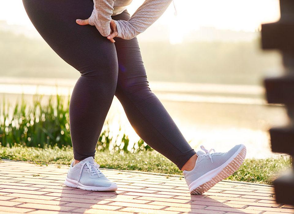 obesity and leg veins maryland