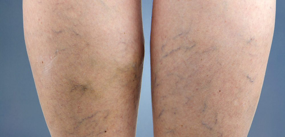 prepare for sclerotherapy maryland