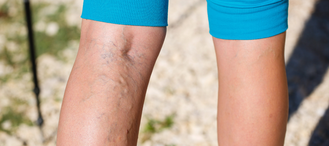 endovenous ablation for varicose veins
