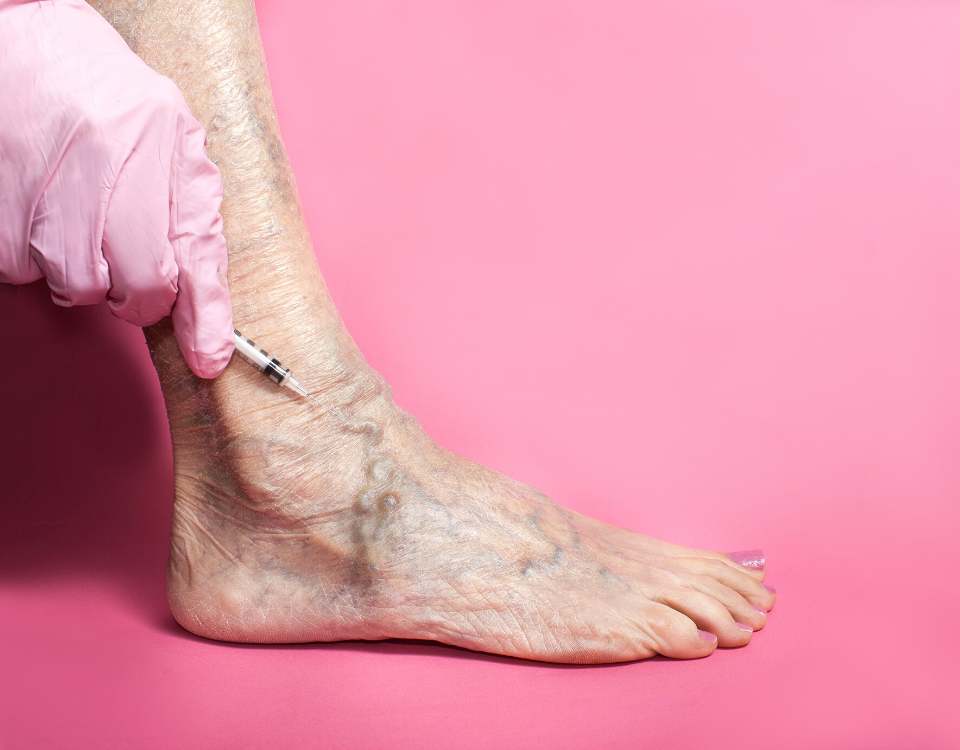 treating spider veins baltimore