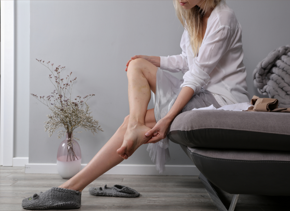 Sclerotherapy Recovery