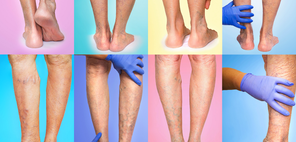 varicose veins maryland