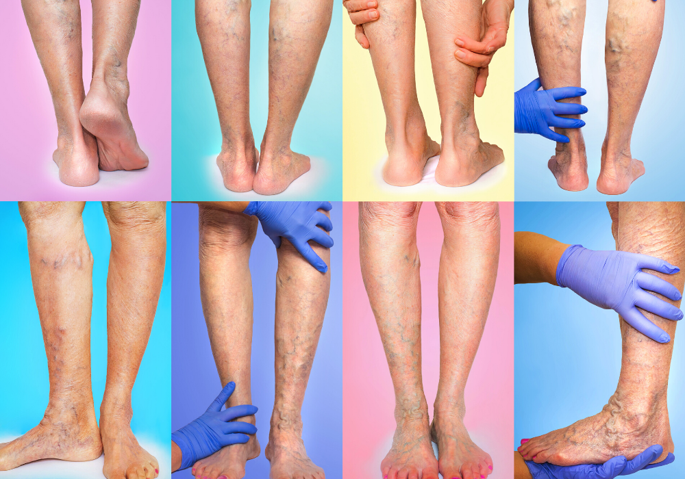 Why Varicose Veins are More Than a Cosmetic Problem - Vein