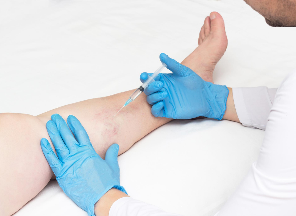 minimally invasive vein treatments in maryland