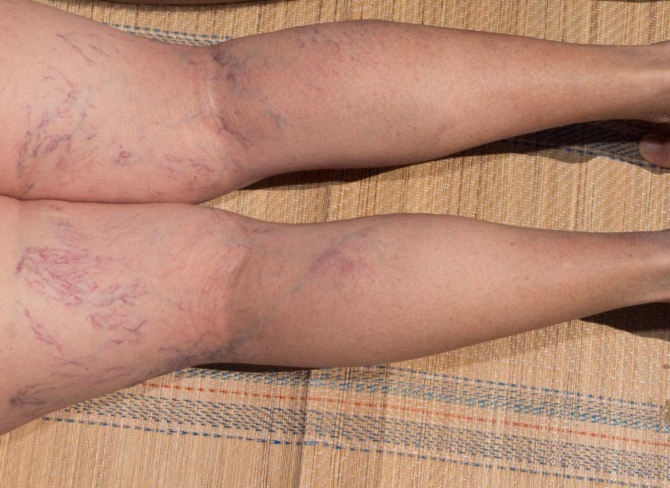 dangers of spider veins in columbia