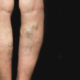 varicose veins in laurel maryland