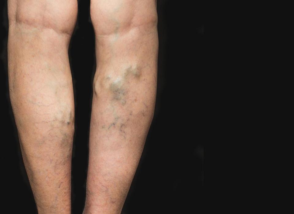 varicose veins in laurel maryland
