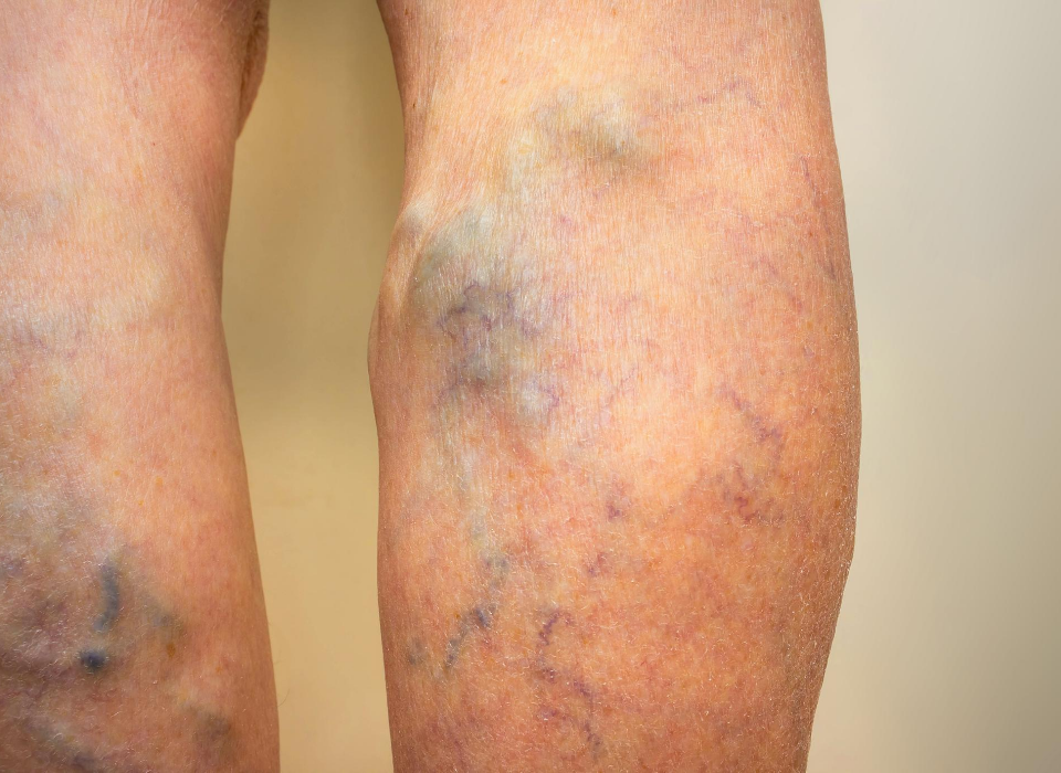 surgery or laser for varicose veins in columbia