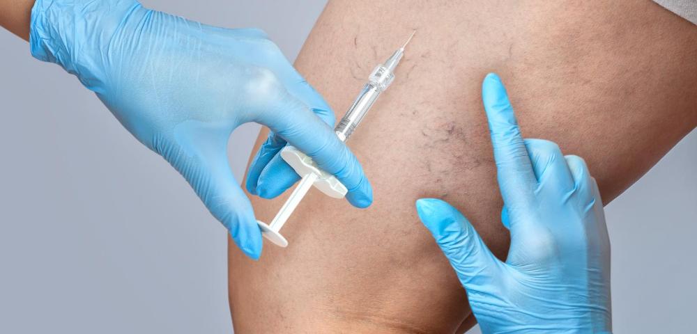 vein treatment specialist maryland