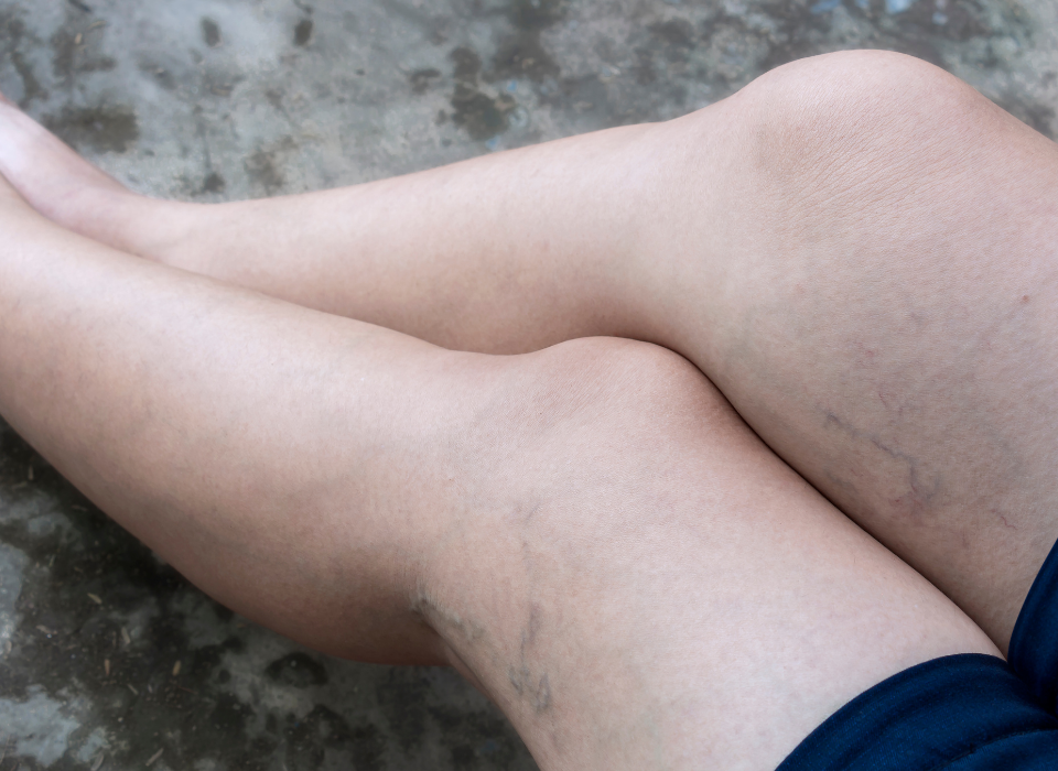 suffering from vein disease in maryland