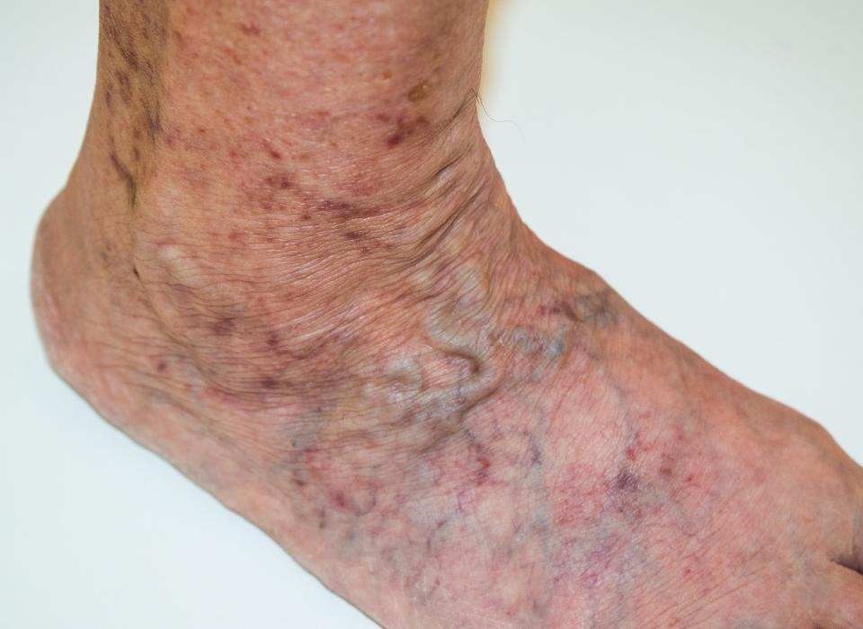 treat vein disease in maryland
