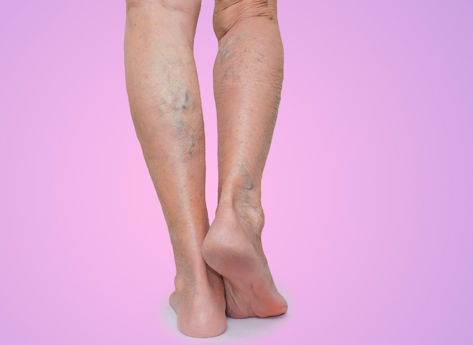 can varicose veins reappear