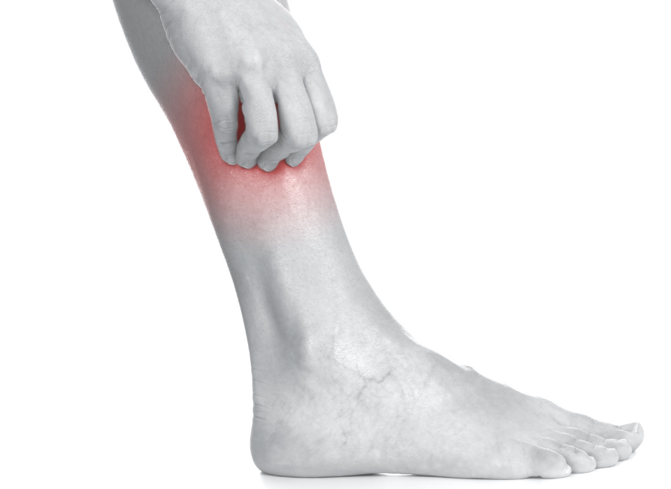 itchy varicose veins in maryland