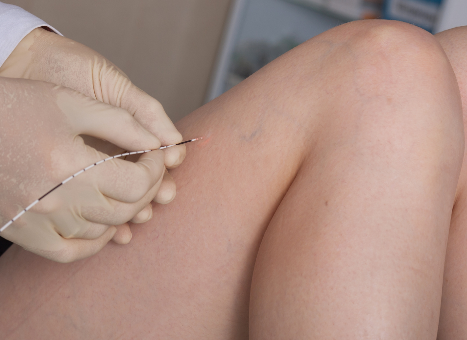 treatments for spider veins maryland