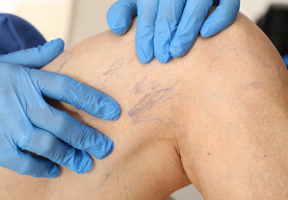 What Are Spider Veins in Ellicott City, Maryland?