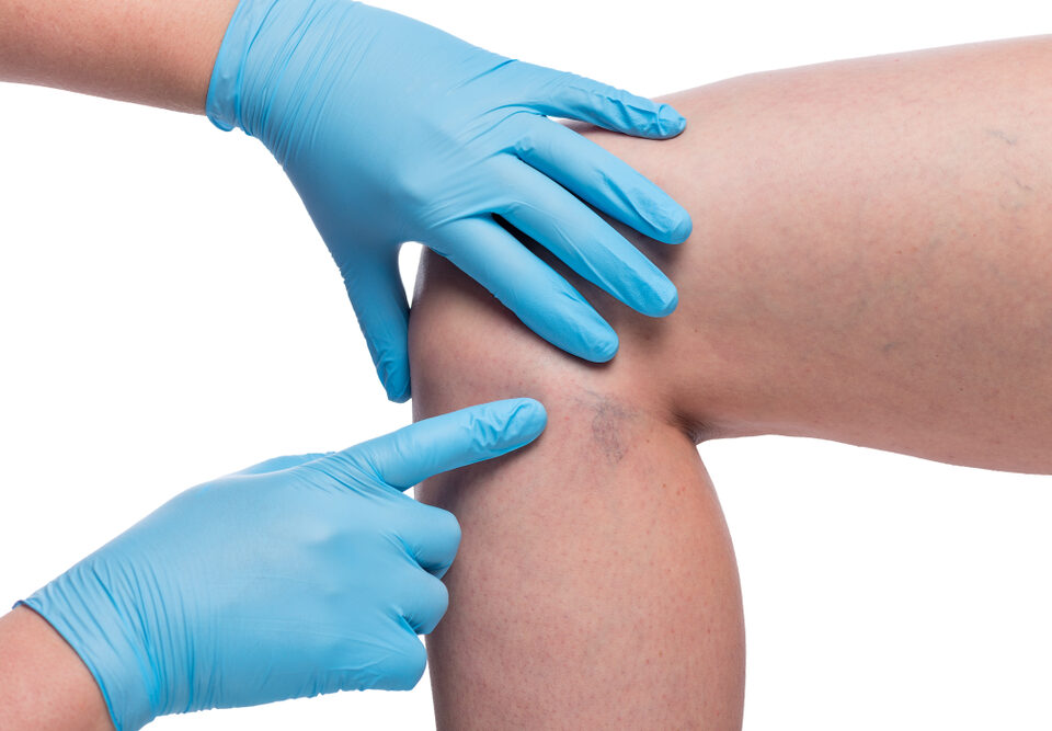 How to Choose the Best Vein Specialist in Bel Air Maryland