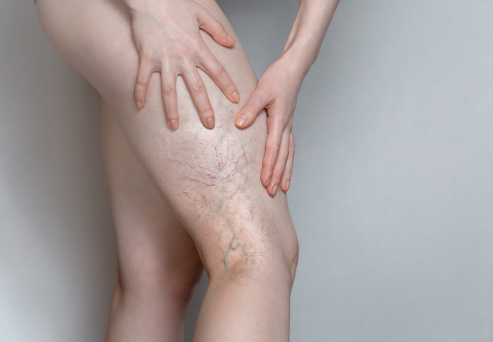 I Have Bulging Leg Veins-- What's Wrong?