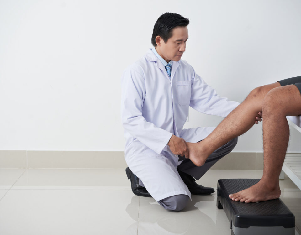 How to Decrease Spider Veins in Severna Park Maryland