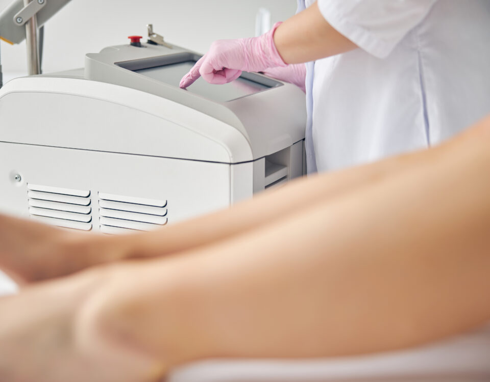 laser vein treatment Columbia